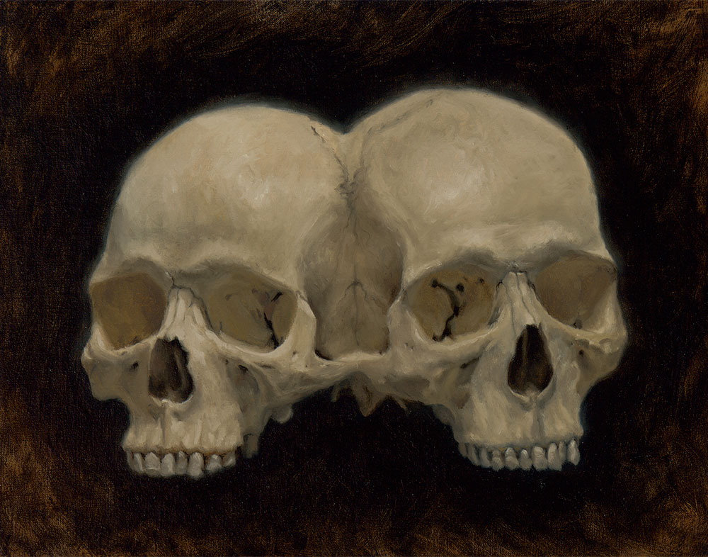 Kyle-Abernethy-conjoined-skull-11x14